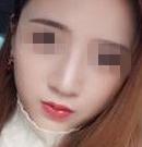 遵义韩美硅胶隆鼻会移位下滑吗?用我的真实经历告诉大家NO