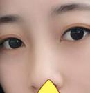 被我嫌弃的单眼皮在遵义韩美做了全切双眼皮后 你猜怎么着