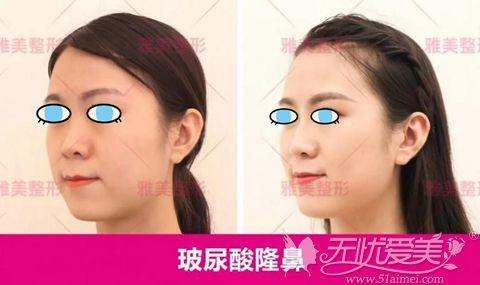 长沙雅美玻尿酸隆鼻案例