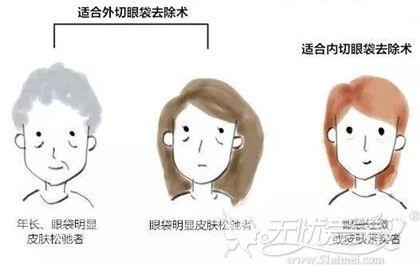 眼袋的不同程度手术方法不同