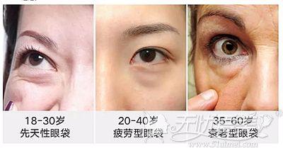 不同年龄出现眼袋的类型