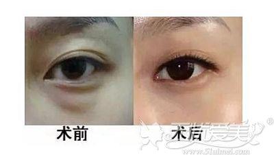 荆门和丽无痕去眼袋术后效果对比