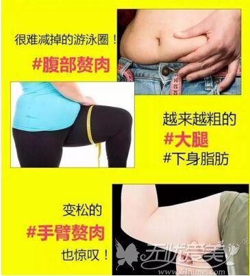 20190江门华美吸脂手术适应症