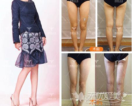 王明利医生腿部吸脂案例