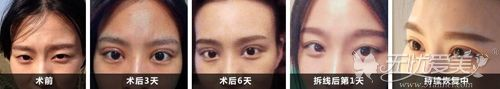 汉中韩美双眼皮恢复案例
