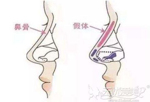 美莱假体隆鼻优势