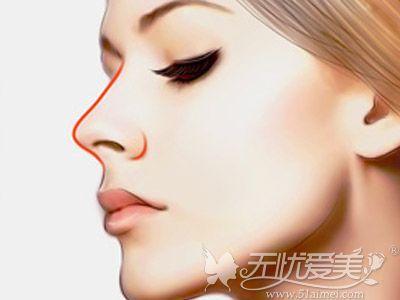 北京美莱假体隆鼻