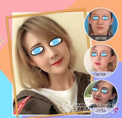 北京美莱医疗美容医院隆鼻案例