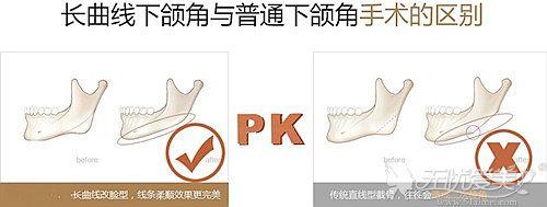 长曲线下颌角和普通下颌角手术的区别