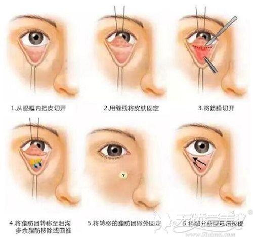 眶隔脂肪释放法祛眼袋原理