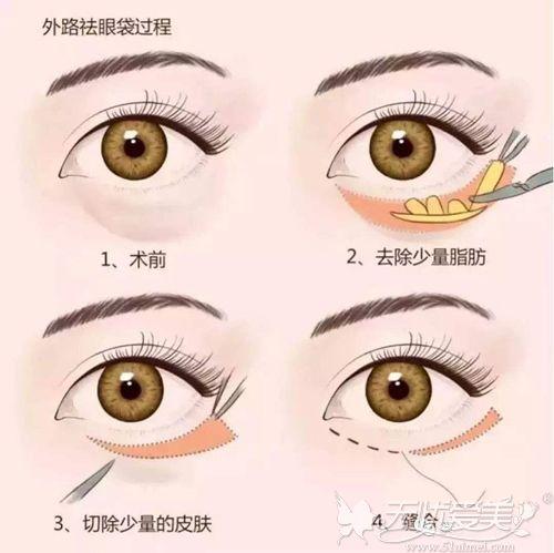 外切祛眼袋原理