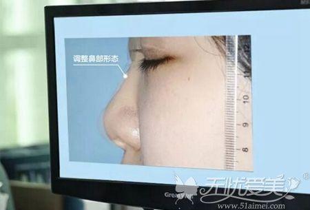 厦门海峡隆鼻前3D数据测量评估