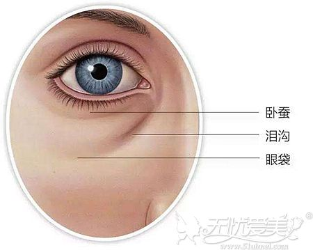 眼袋的存在位置和形态