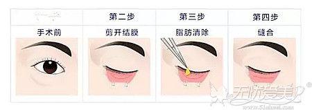鸡西御美楼内切去眼袋的手术原理
