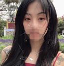 上一次割双眼皮因眼皮松弛失败后来到广州佳人医疗做修复