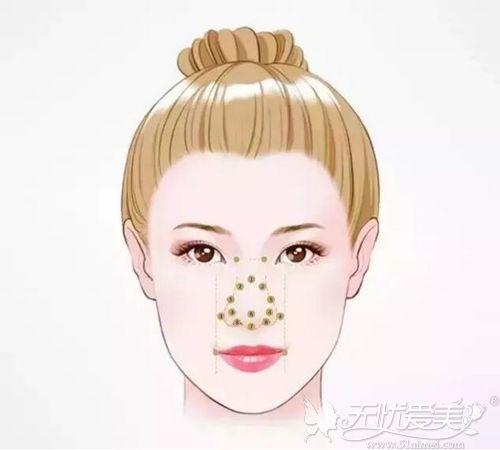 赣州韩美美鼻的标准