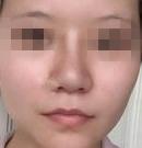 之前做的硅胶隆鼻导致鼻头变宽来西安壹加壹修复后好多了
