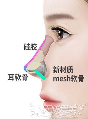韩国纯真mesh隆鼻过程