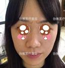 同事说我花30000元在长沙协雅做的鼻综合很值 案例照分享下术前
