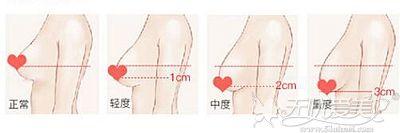 宁夏华美乳房提升术可以矫正不同程度的下垂