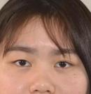 吴秀英双眼皮怎么样?找到她坐诊的武汉卓美手术后我服气了
