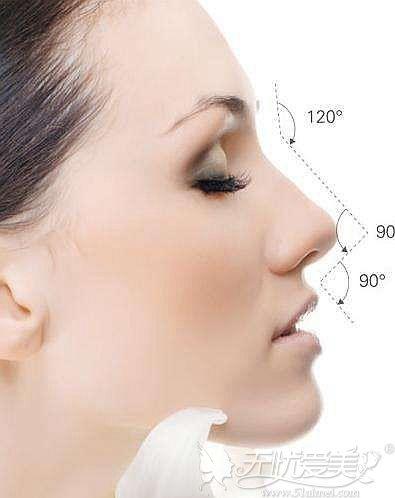 假体隆鼻可以改善鼻部凹陷