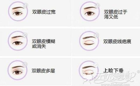杜园园修复双眼皮怎么样厉害吗?通过上海美莱真人案例了解