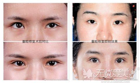 上海美莱杜园园修复双眼皮案例