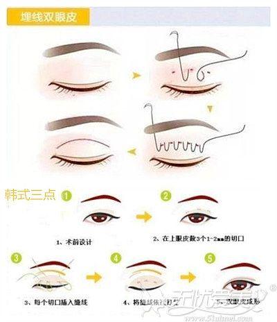 埋线和韩式三点双眼皮手术解析