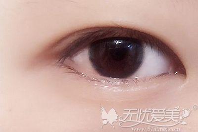 内双可以通过双眼皮手术让眼睛重新变大