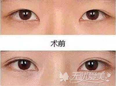 扬州艾菲斯双眼皮手术案例