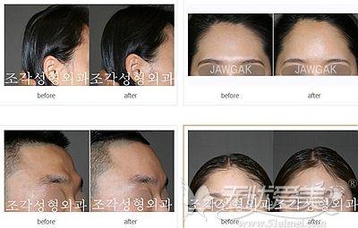 韩国雕刻骨水泥填充头顶、后脑勺案例