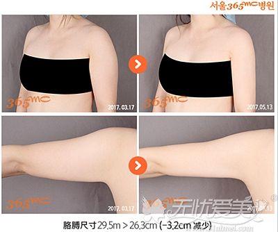韩国365mc兰斯吸脂术前术后对比