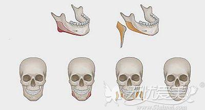 下颌角缩小术的原理