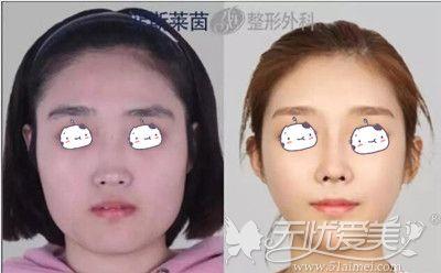 韩国菲斯莱茵下颌角缩小术案例