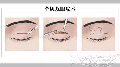 30岁做双眼皮手术适合全切双眼皮手术