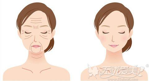 面部衰老下垂可以体验线雕提升颜值