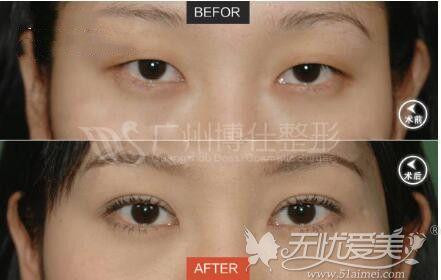 广州博仕仿生理双眼皮真人案例