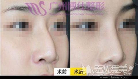广州博仕张建军仿生理隆鼻案例