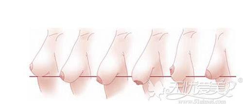 胸部下垂的程度