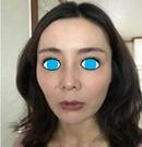 聊聊我在韩国碧夏做肋软骨隆鼻+自体脂肪全脸填充手术过程术前