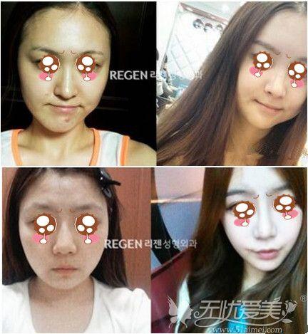 韩国丽珍面部线雕案例