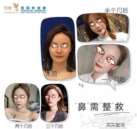 杭州艺星鼻整形修复案例