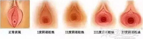 阴道松弛的程度
