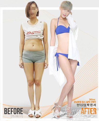 韩国365mc腰腹部兰斯吸脂案例