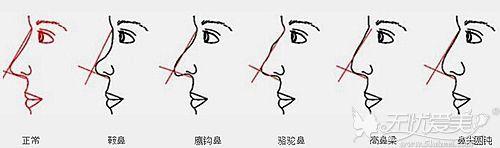 不理想鼻子的多种类型