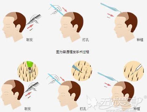韩国JP毛发移植中心手术过程