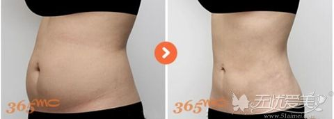 韩国365mc腰腹吸脂手术案例