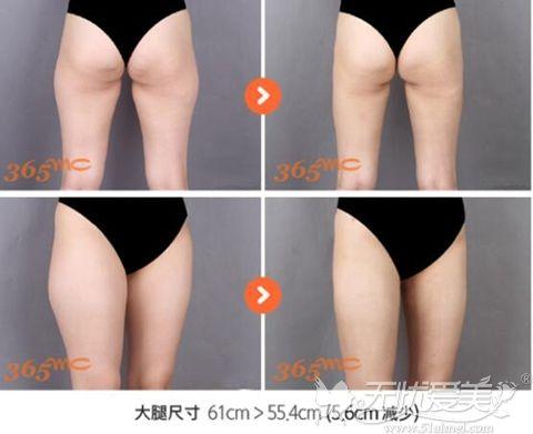 韩国365mc大腿吸脂手术案例