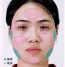 某主播找爱思特杨千里主任做了面雕+隆鼻后化身成电竞女神